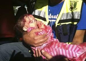 Izraelské dítě zraněné při palestinském raketovém útoku.